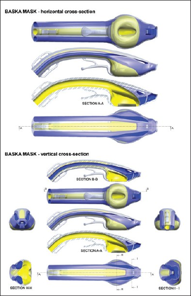Figure 3: Cross-sectional engineering drawings of the Baska Mask®, showing separation of the sump and aspiration tubes from the airway and ventilation tubes. Horizontal and vertical cross sections