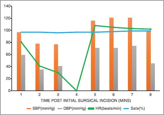 spinal anesthesia for cesarean delivery in von willebrand Nguyen-lu n, carvalho jc, kingdom j, et al mode of anesthesia and clinical outcomes of patients undergoing cesarean delivery for invasive placentation: a retrospective cohort study of 50 consecutive cases.