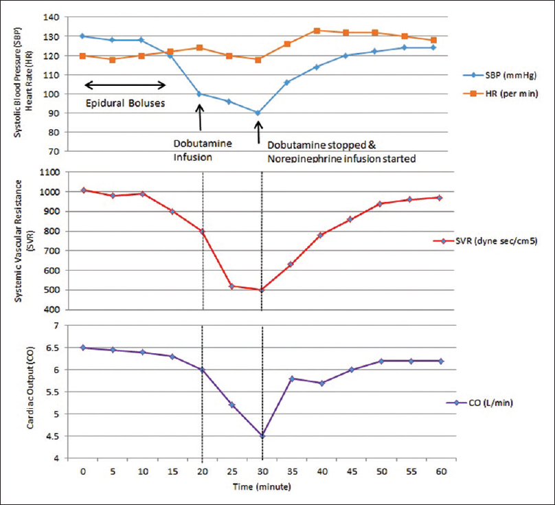 Figure 1: Perioperative variation of systolic blood pressure, heart rate, systemic vascular resistance and cardiac output with time
